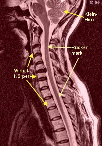 Die Schmerzen von der linken Seite des Rückens des Grundes die Behandlung