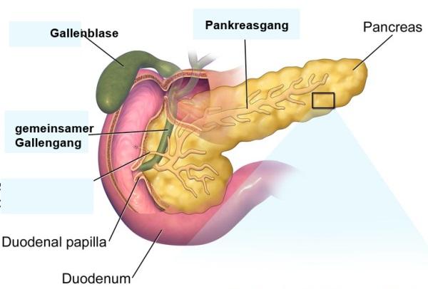 Pankreas- Karzinom (Krebs der Bauchspeicheldrüse)