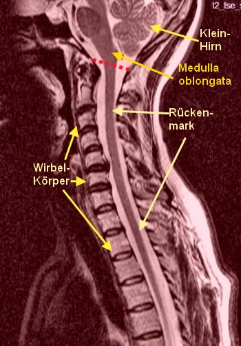 Rückenmark: Basiswissen für Heilberufe
