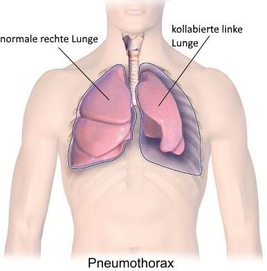 Pneumothorax für Heilberufe