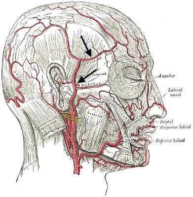 Arteriitis temporalis für Heilberufe